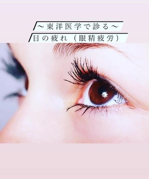 〜東洋医学で診る〜  目の疲れ(眼精疲労)