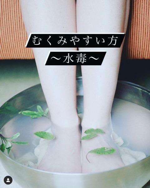 むくみやすい方〜水毒〜