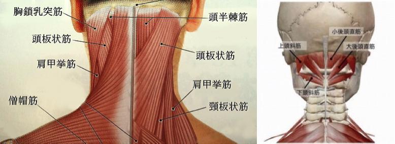 頭痛の原因は首や肩のこり